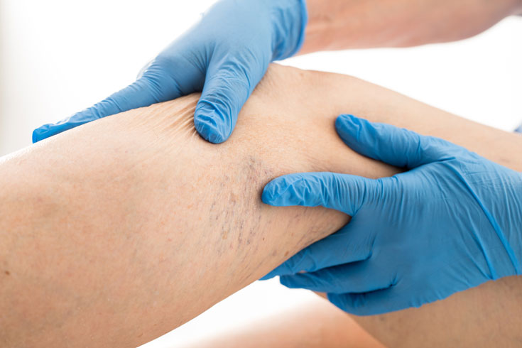 Ultrasound guided sclerotherapy for varicose and spider veins in Sydney