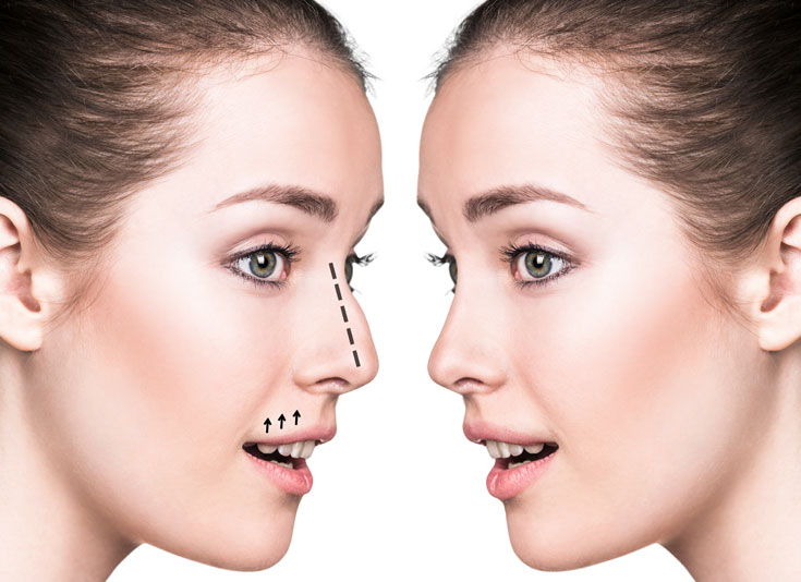 Nose job - rhinoplasty surgery - Shire Cosmetic Sydney