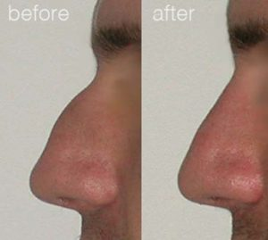 Rhinoplasty results - before and afters 10