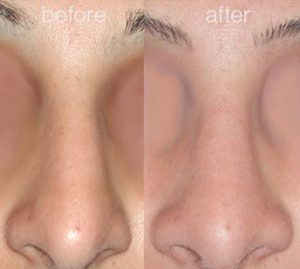 nose job before and after 2