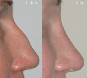 nose job - rhinoplasty before and afters 3