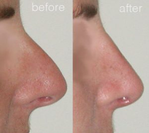 nose job image before and after surgery 4