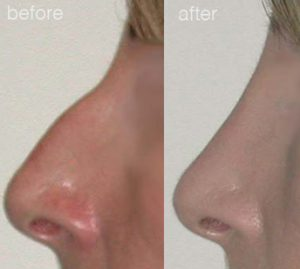 nose job surgery before and after 5