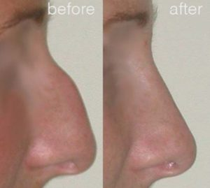 nose job Sydney before and afters 6