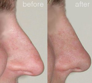 nose surgery before and after - image 7