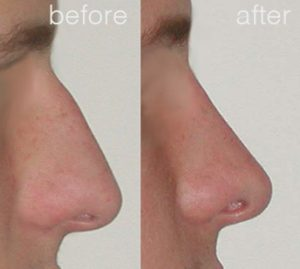 Rhinoplasty Sydney Image Before and After -9